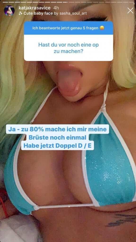 Katja Krasavice kündigt nächste Schönheitsoperation via Instagram Story an